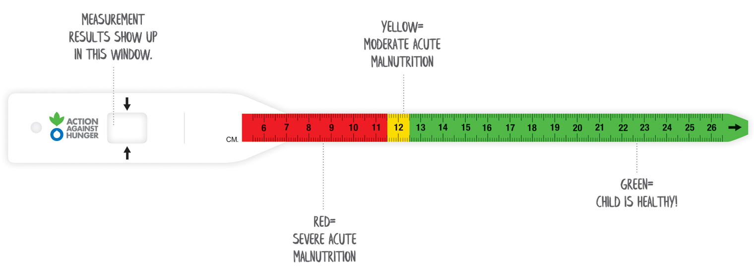 Malnutrition Detection Band